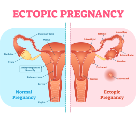 what is an ectopic pregnancy